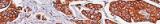 Coloration de Grocott