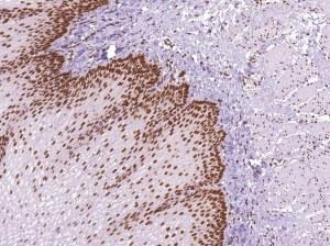 Nouveaux anticorps pour le diagnostic = échantillons gratuits